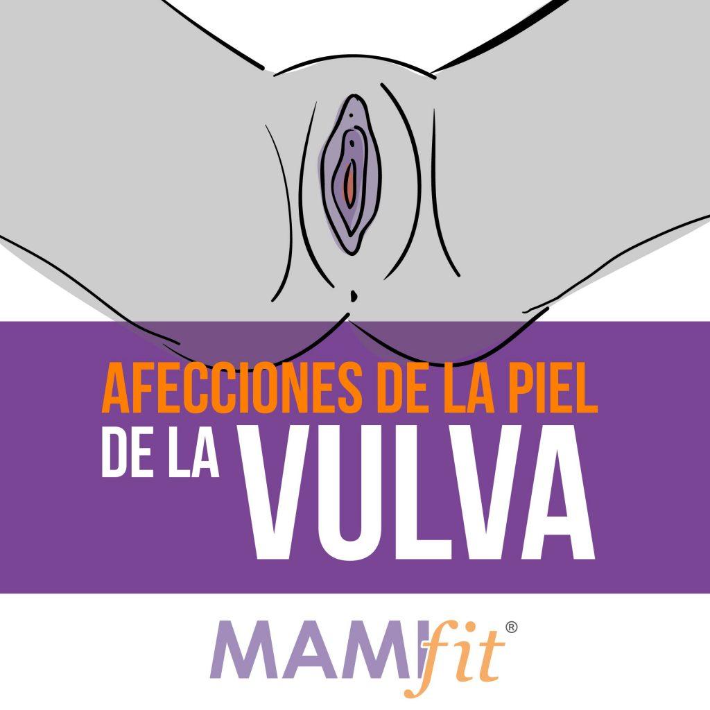material blanco alrededor de la uretra femenina